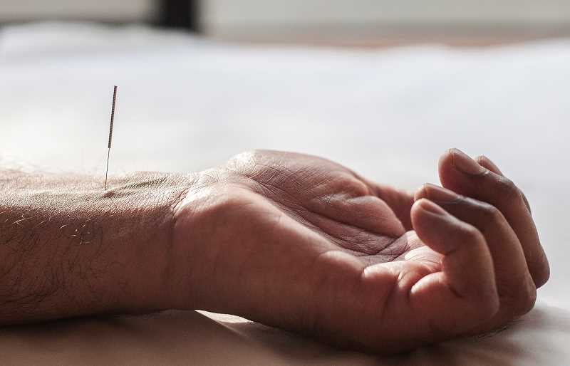 by:  JOSH KULLA - Acupuncture can be used to treat nausea and vomiting associated with traditional cancer treatment. As shown here, the wrist is one of the most commonly used acupuncture pressure points.