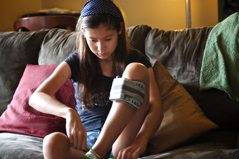 Photo Credit: TIMES PHOTO: JAIME VALDEZ - Nathalie Traller wears an electric brace, which stimulates the nerves in her leg.