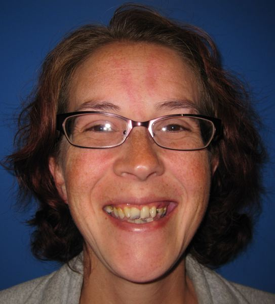 SUBMITTED PHOTO - In a before photo, Christina Mercier's teeth were discolored and broken, due to radiation and chemo-therapy treatments for cancer.
