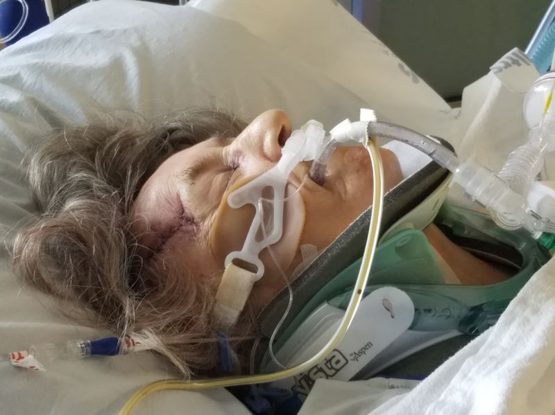 PHOTO COURTESY: MICHAEL GABRIEL - Norma Gabriel is pictured at Oregon Health & Science University on the day after she was hit by a FedEx truck.