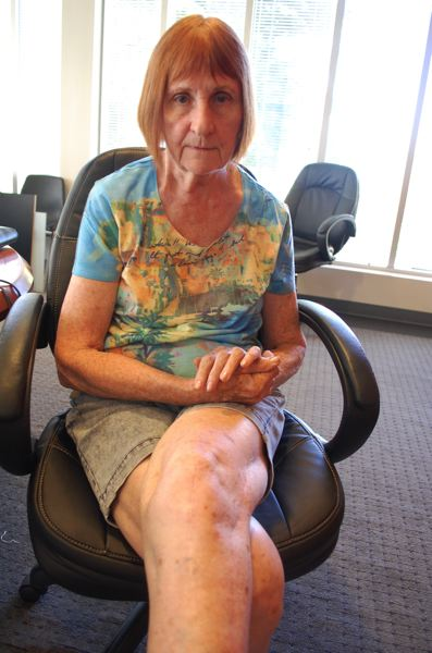 PHOTO BY: RAYMOND RENDLEMAN - Gillian Hibbs still has scars on her leg from a knee replacement and metal plates that were made medically necessary by a Milwaukie police officer shattering her leg on Oct. 16, 2013.