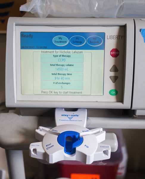 OUTLOOK PHOTO: JOSH KULLA - The monitor of Nick LaHusen's home dialysis machine.