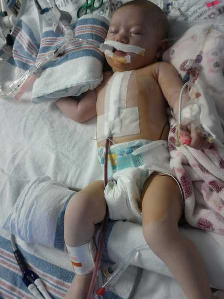 COURTESY PHOTO - Cora Sutton was born in 2011 with hypoplastic left heart syndrome and is now in need of a heart transplant.