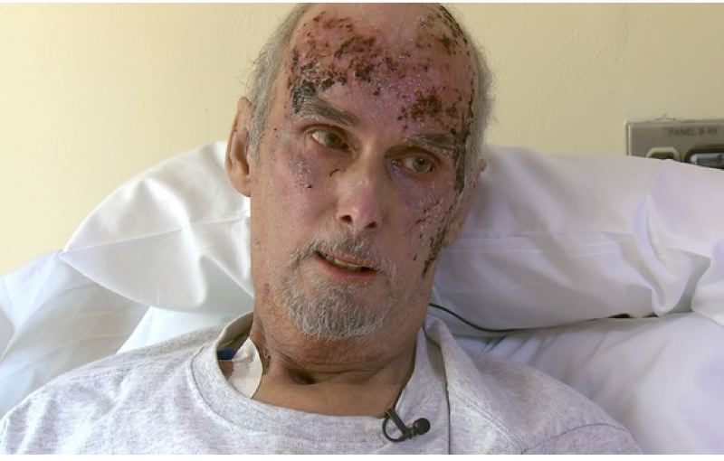 PHOTO BY: KOIN 6 NEWS - Scott Ranstrom was recovering well four months after he was the victim of a horrific attack Aug. 11, 2017, when a stranger poured gasoline on him and set him on fire.