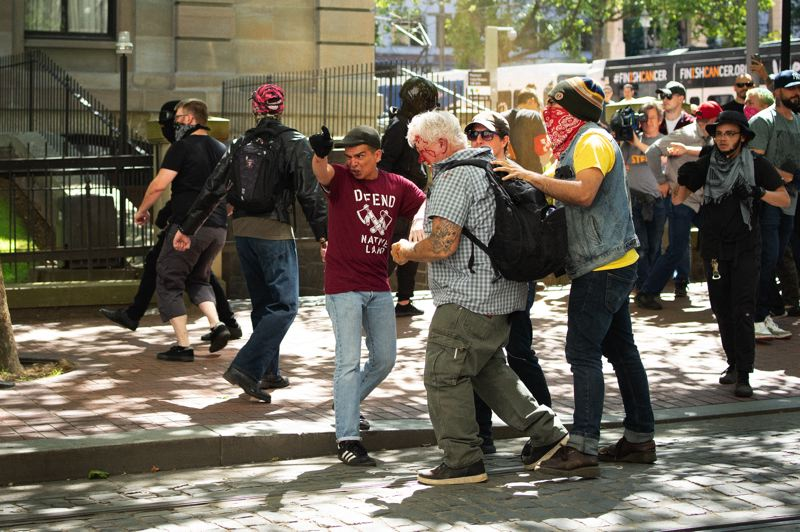 PMG PHOTO: KIT MACAVOY - A man bleeds from the face after a street brawl broke out in downtown Portland on Saturday, June 29.