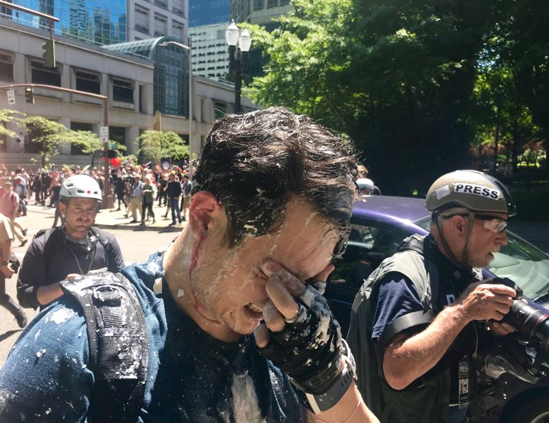 PMG PHOTO: ZANE SPARLING - Live-streamer Andy Ngo grimaces in pain after being attacked near the Multnomah County Justice Center on Saturday, June 29.