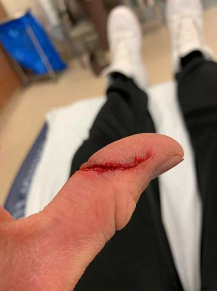 COURTESY PHOTO: LUKE OVGARD - After being soaked in iodine, the authors thumb wasnt quite so horrific, but it still called for five stitches and will leave an ugly scar.