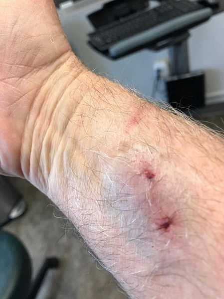 COURTESY OF LARRY BRANDT - Larry Brandt said he was surprised that all he got was a bite on the wrist from the serval he helped save after the injured animal was rescued along I-205 on June 19. The bite resulted in Brandt having to get a tetanus shot and he ran a low-grade fever for a couple of days as well.
