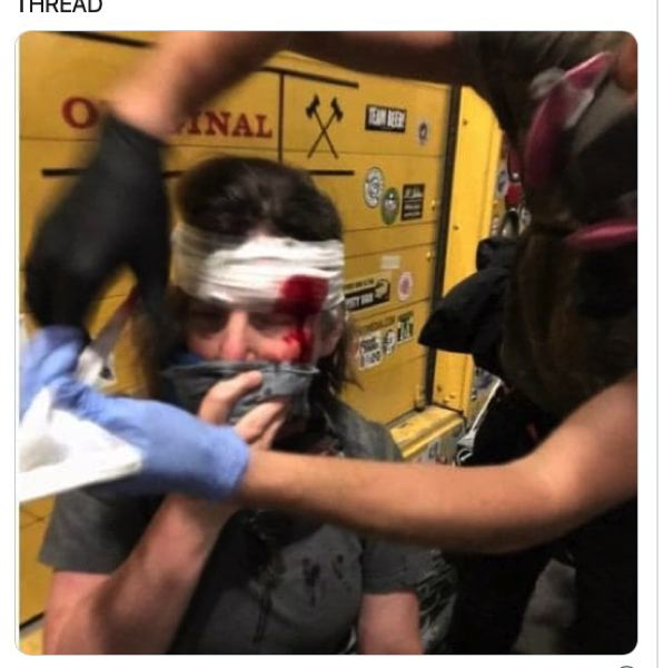 COURTESY PHOTO: TWITTER - This photo of Lewis & Clark College history professor Maureen Healy injured during a July 21 downtown protest became part of the congressional hearing record Tuesday, July 28.