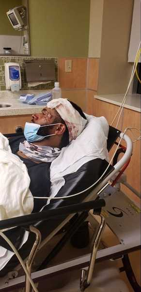COURTESY PHOTO: ACLU OF OREGON - Plaintiff Andre Miller was hospitalized after allegely being shot in the head with a tear gas canister by federal officers on July 22, 2020.