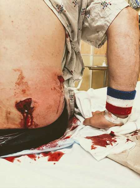 COURTESY PHOTO: ACLU OF OREGON - Plaintiff James McNulty was allegely shot in in the back by federal officers at a Portland protest on July 21, 2020.