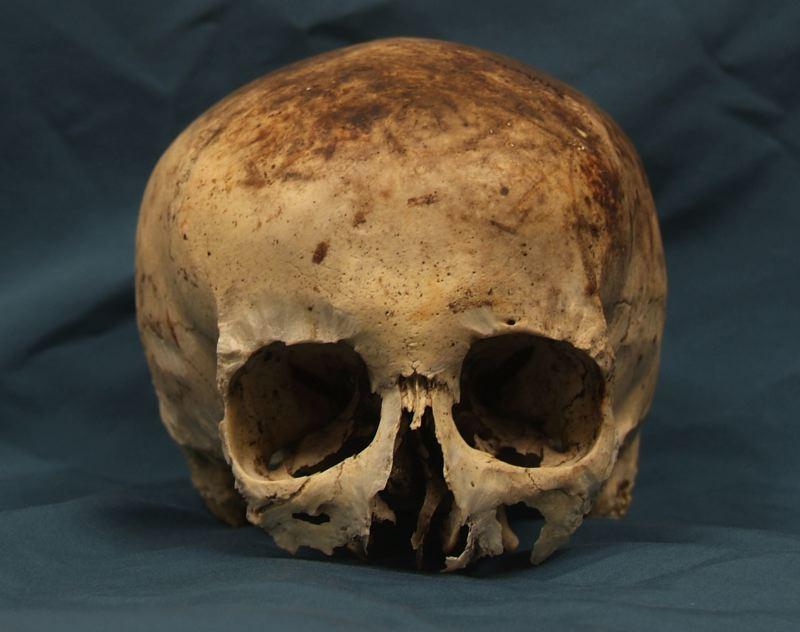 COURTESY PHOTO: CLACKAMAS COUNTY SHERIFFS OFFICE - A breakthrough has been made in a case that began after this skull was discovered in the 1980s near Government Camp.