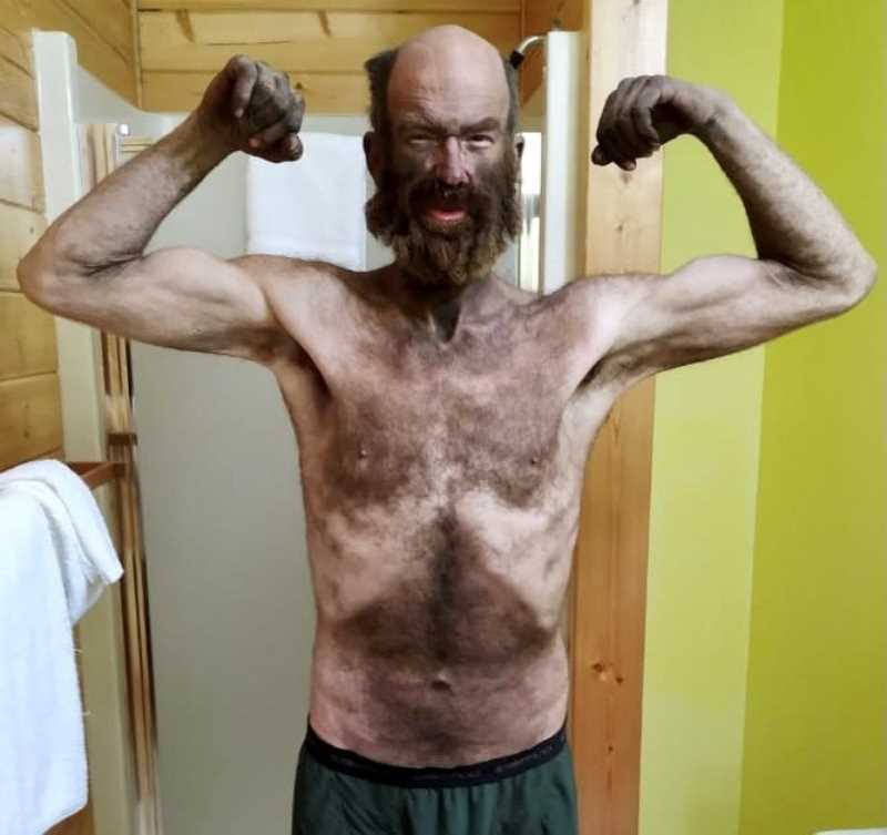 """COURTESY PHOTO: COLTER BARNES  - Colter Barnes lost 86 pound in his 67-day adventure on the HISTORY Channel survival challenge """"Alone."""" """"I had to be one of the filthiest contestants of all time, and I'm proud of that,"""" says Barnes."""