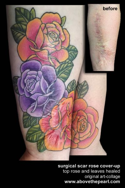 COURTESY PHOTO: TANYA MAGDALENA - A tattoo of roses and leaves concealing a surgical scar.