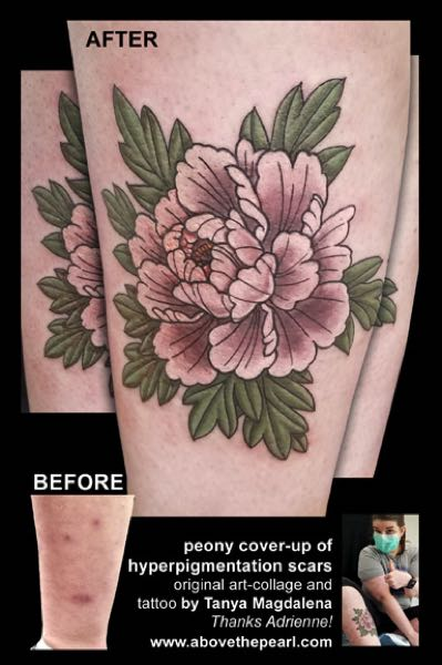 COURTESY PHOTO: TANYA MAGDALENA - A tattoo of a peony and leaves concealing hyperpigmentation scars.