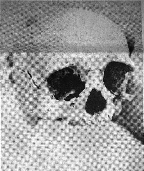 CENTRAL OREGONIAN - October 7, 1971:  A Salem hunter got more than he expected Saturday. Instead of deer, he found a human skull laying on top of the ground on the Congleton Ranch, ten miles northeast of Paulina. State Troopers investigated the scene but could find no other remains. There is no indication of how old the skull is, but it apparently had been in the area for a great length of time. It will be sent to Salem for analysis.