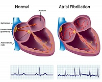 COURTESY GRAPHIC - AFib is caused when the normal electrical system in the heart starts getting out of rhythm.